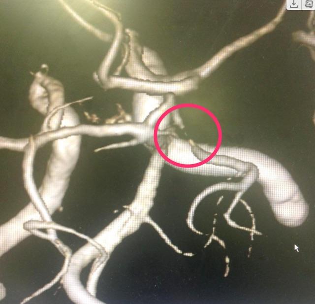 MRAにおける動脈狭窄