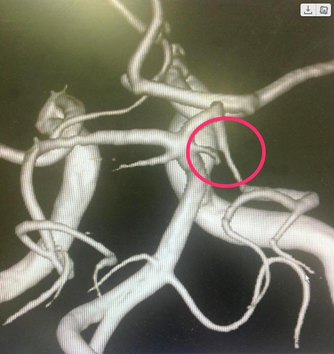 プレタールで動脈狭窄改善