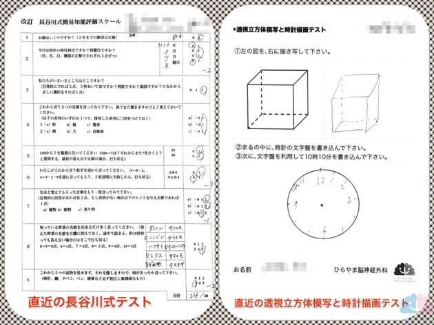 MCIの長谷川式テスト、透視立方体模写と時計描画テスト