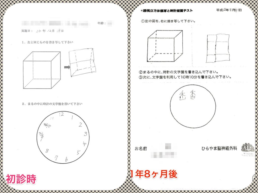 透視立方体模写と時計描画テストの悪化