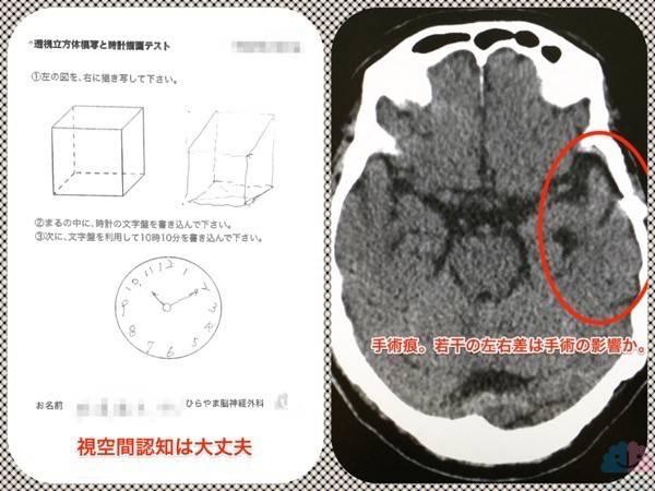 ポリファーマシーで認知症になった高齢者