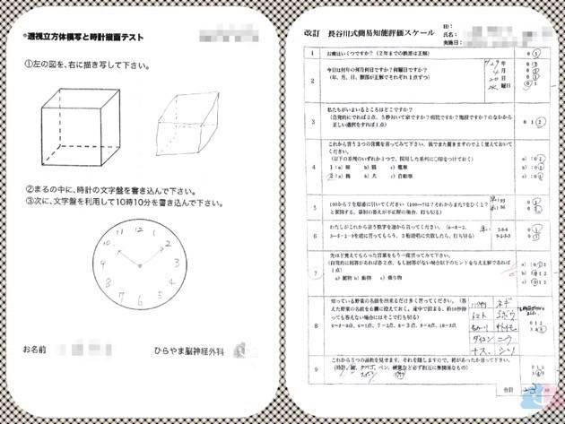 MCIの透視立方体模写と時計描画テストと長谷川式テスト