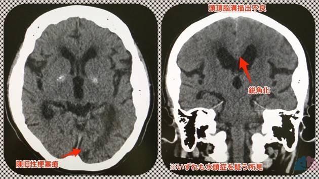 陳旧性脳梗塞痕と水頭症所見