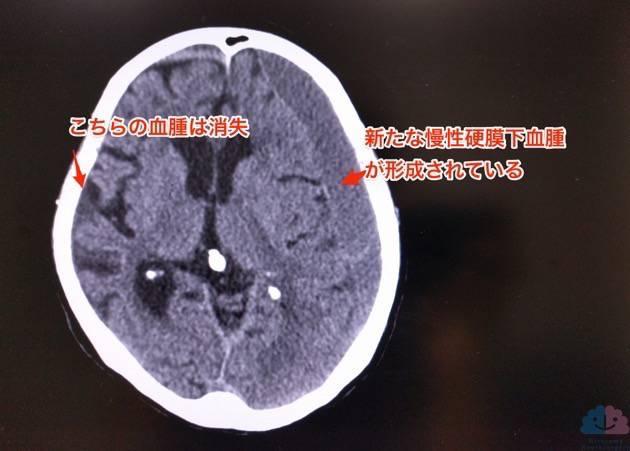 急性硬膜下血腫は消失、慢性硬膜下血腫が形成