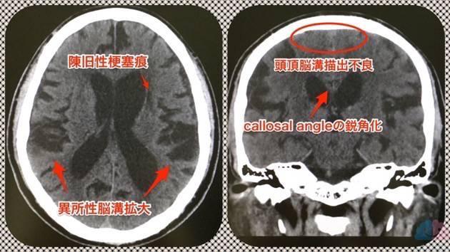陳旧性脳梗塞と正常圧水頭症