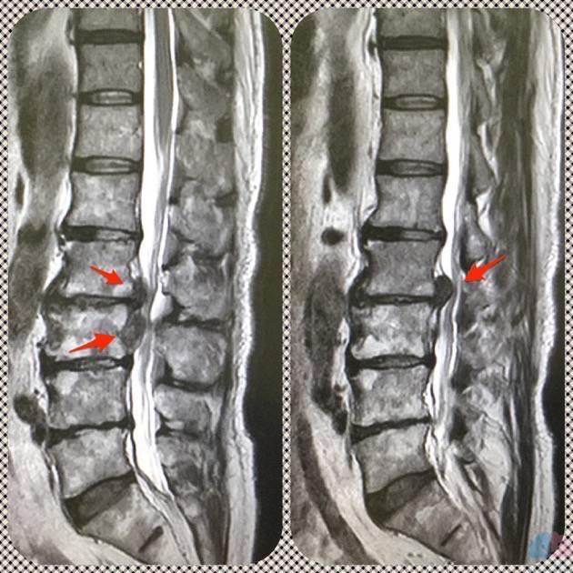 腰椎椎間板ヘルニアのMRI