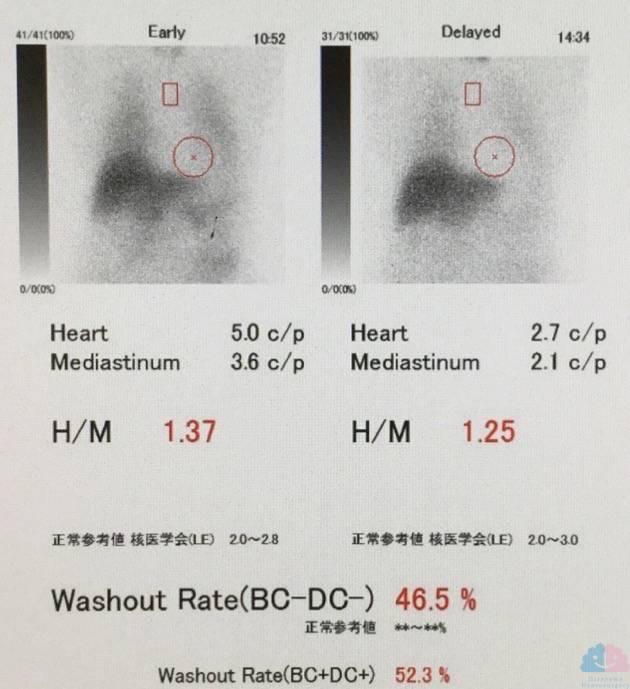 MIBG心筋シンチ 画像