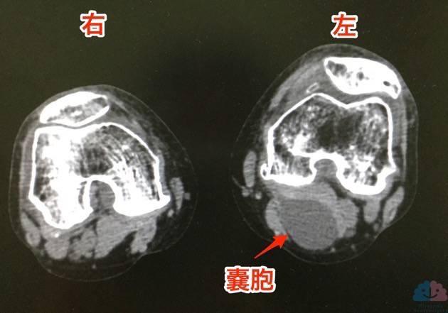 ベイカー嚢胞のCT画像