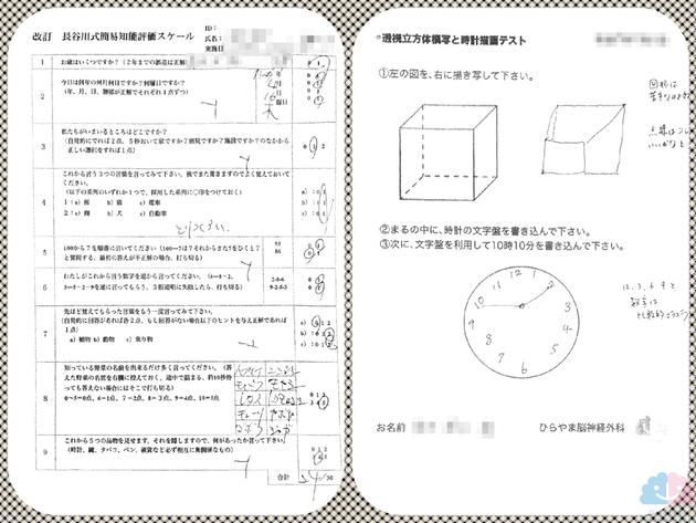 パーキンソン病の長谷川式、透視立方体模写と時計描画テスト