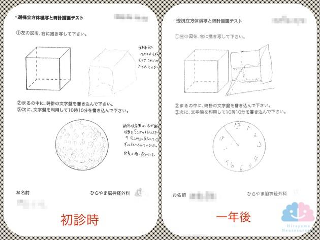 透視立方体模写と時計描画テスト、1年の推移