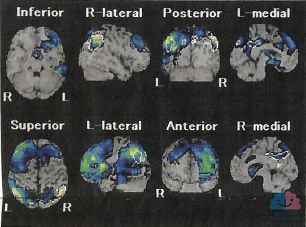 脳SPECT画像