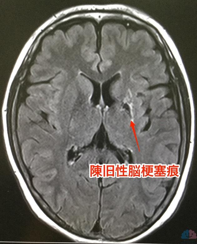 左基底核脳梗塞