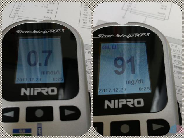 イントラリポス前のケトン値と血糖値