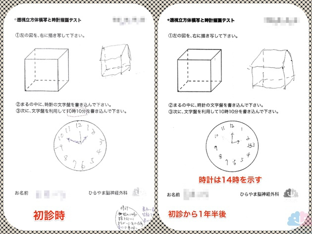 時計描画テスト比較