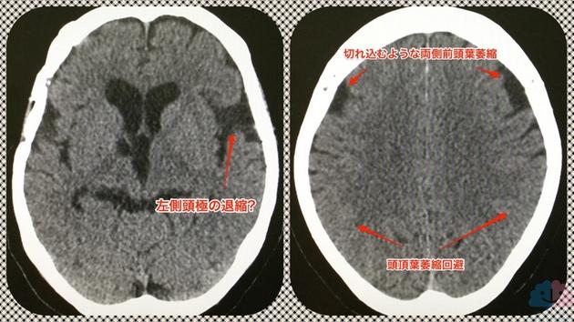 FTD(ピック病)のCT画像