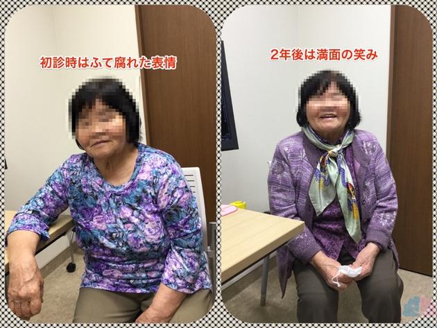 アルツハイマー型認知症患者の表情変化