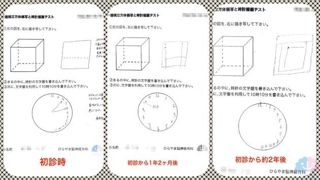 透視立方体模写と時計描画テストの変化