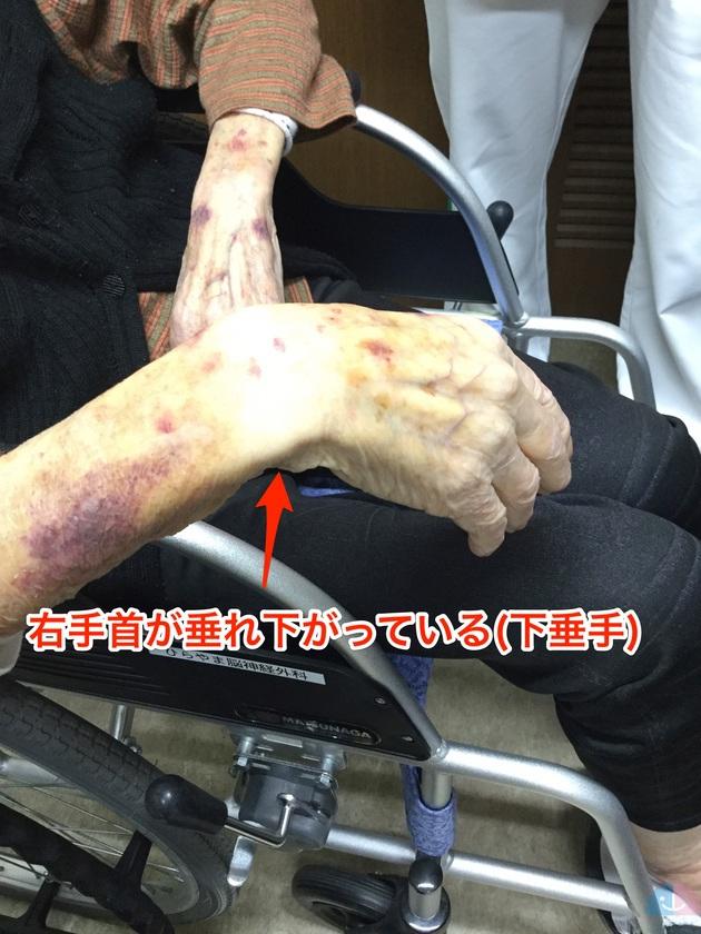 下垂手(橈骨神経麻痺)