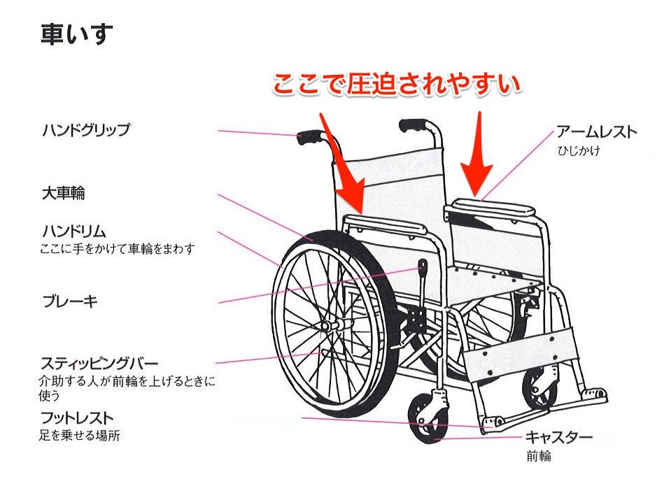車いすで橈骨神経麻痺