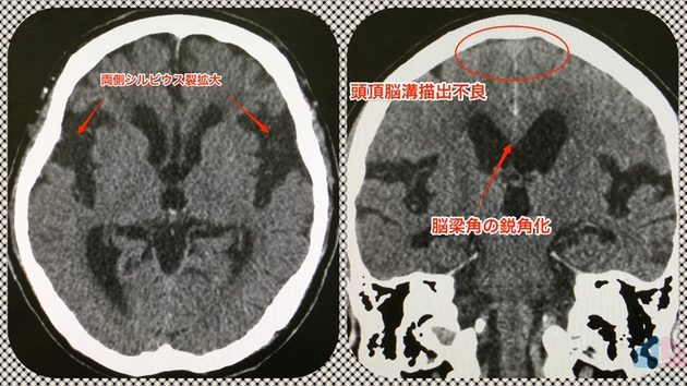 典型的な頭部CTにおけるDESH所見