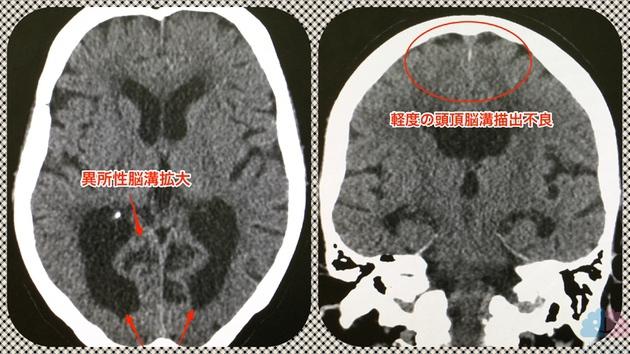 非典型的な頭部CTにおけるDESH所見