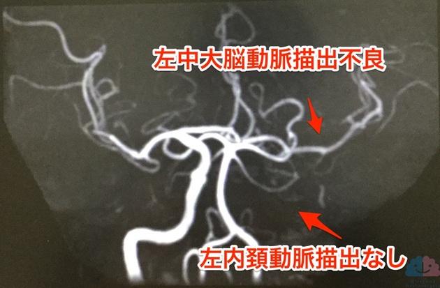 MRAで左内頚動脈描出なし