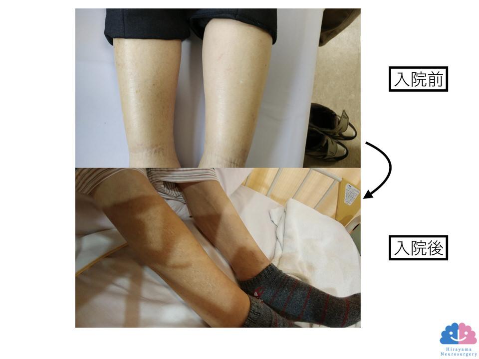 利尿剤で下腿浮腫改善