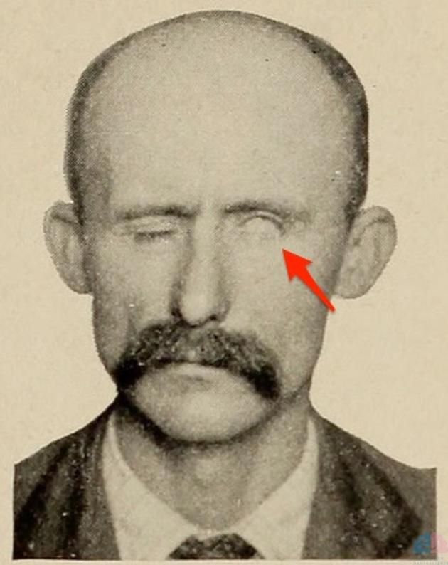 左末梢性顔面神経麻痺 閉眼不可