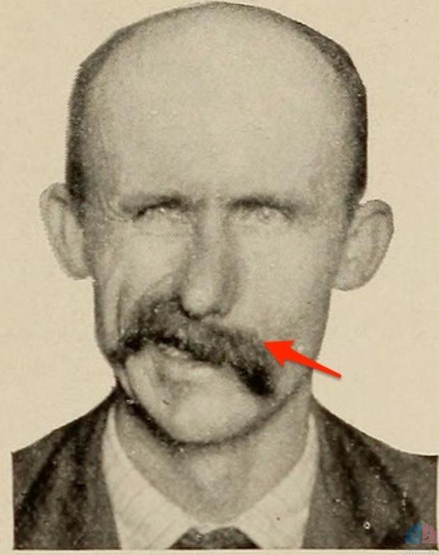 左末梢性顔面神経麻痺 口角下垂