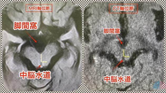 PSP 中脳被蓋 測定 画像診断