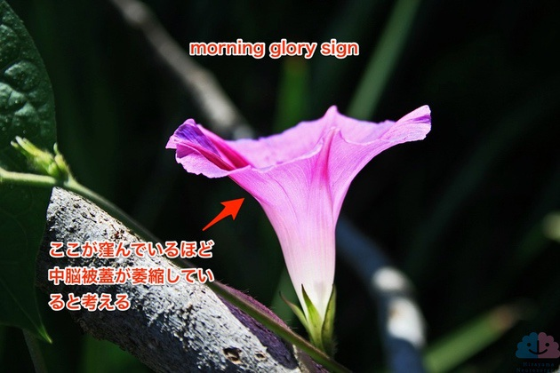 morning glory sign PSP 朝顔