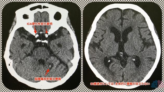 91歳女性の頭部CT