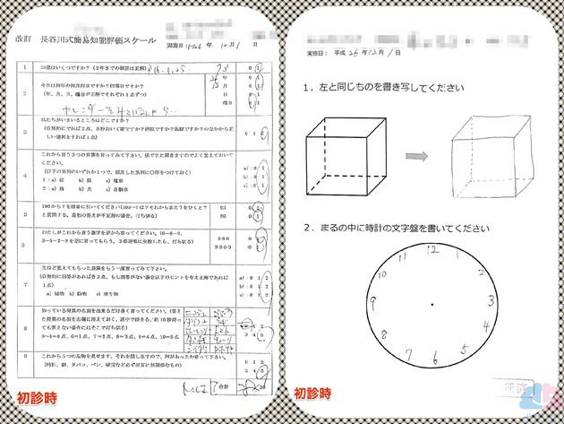 MCIのHDS-Rと透視立方体模写と時計描画テスト