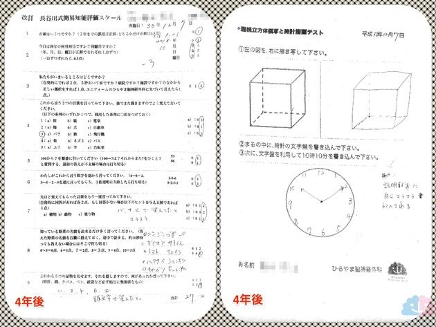 軽度認知障害 長谷川式 透視立方体模写と時計描画テスト