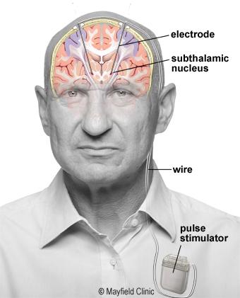 DBS(脳深部刺激療法)