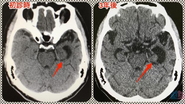 意味性認知症の頭部CT、3年の経過で左側頭葉の萎縮進行