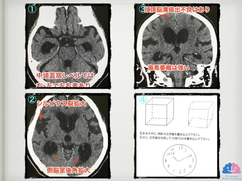 正常圧水頭症とアルツハイマー型認知症合併例
