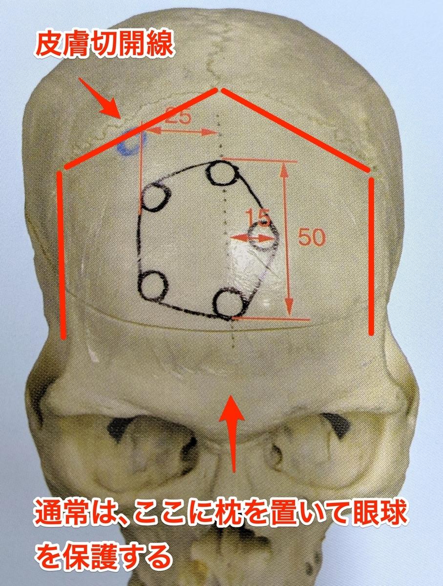 前頭側頭開頭術