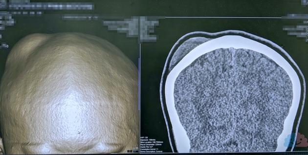帽状腱膜下血腫の頭部CT画像