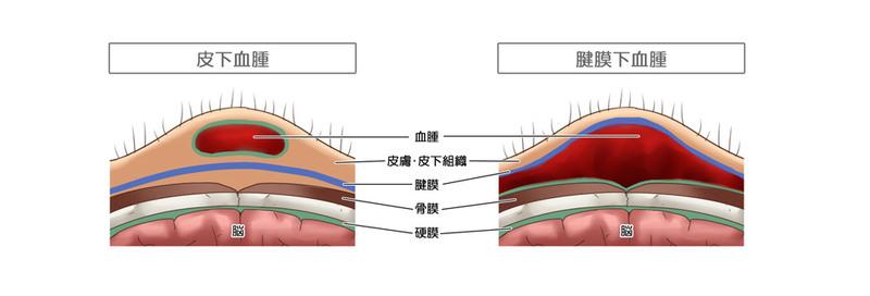 たんこぶ 皮下血腫 帽状腱膜下血腫