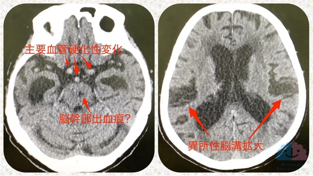アルツハイマー型認知症と正常圧水頭症の合併
