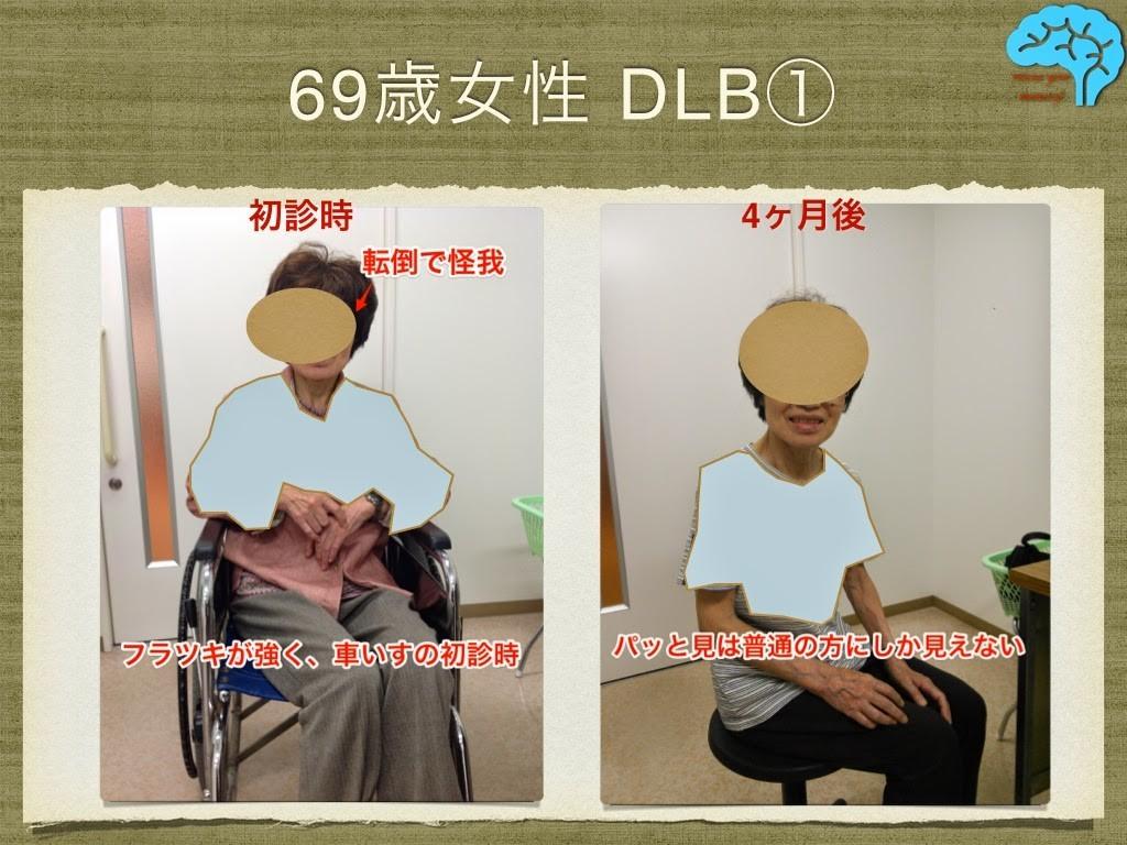 DLBの改善例
