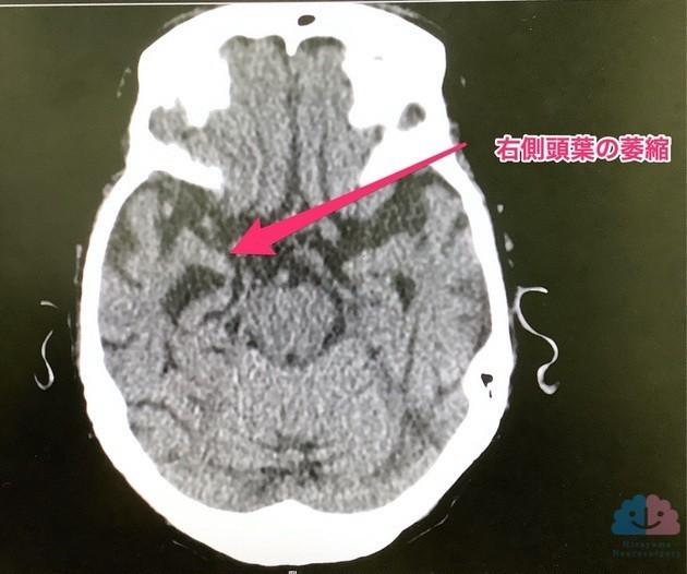 嗜銀顆粒性認知症のCT