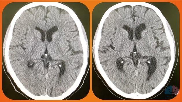 前頭側頭型認知症の頭部CT