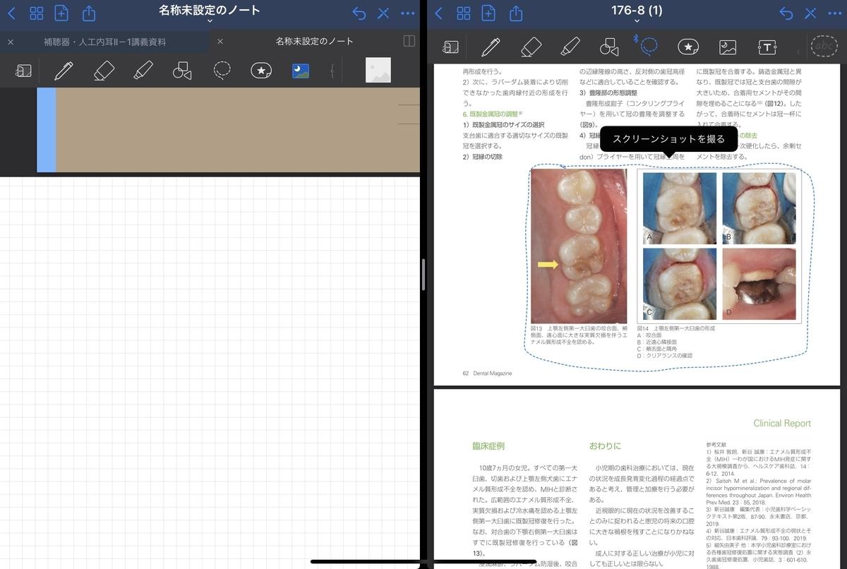 f:id:takashineozeon:20210515213752j:plain