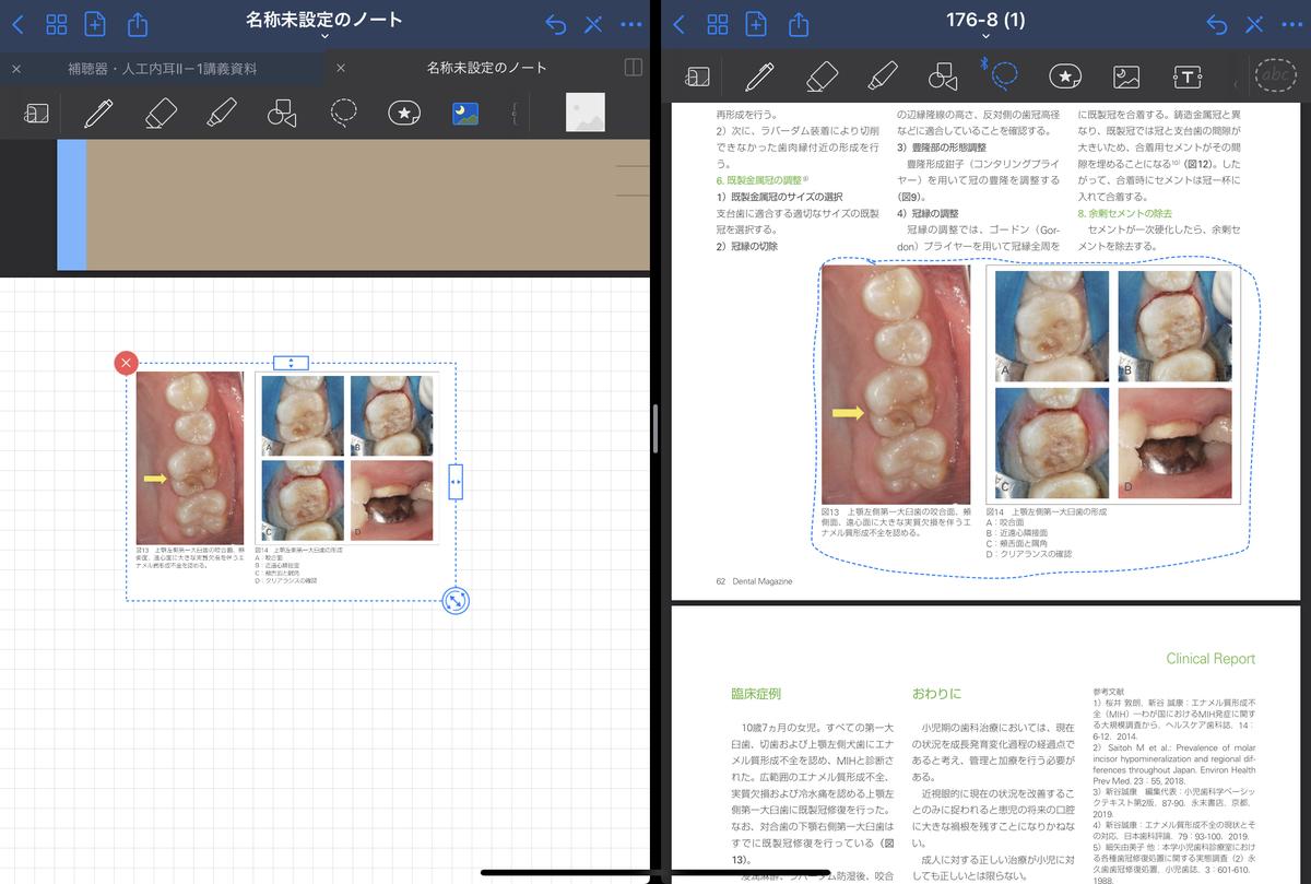f:id:takashineozeon:20210515213818j:plain