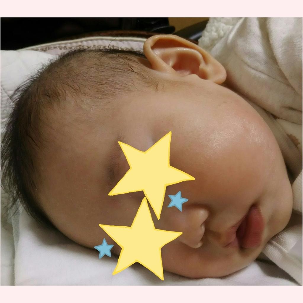 湿疹 赤ちゃん お腹