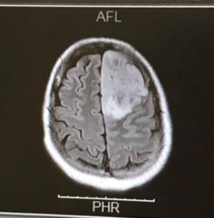 【摘出手術前】タローの脳腫瘍(白っぽいところ)CT