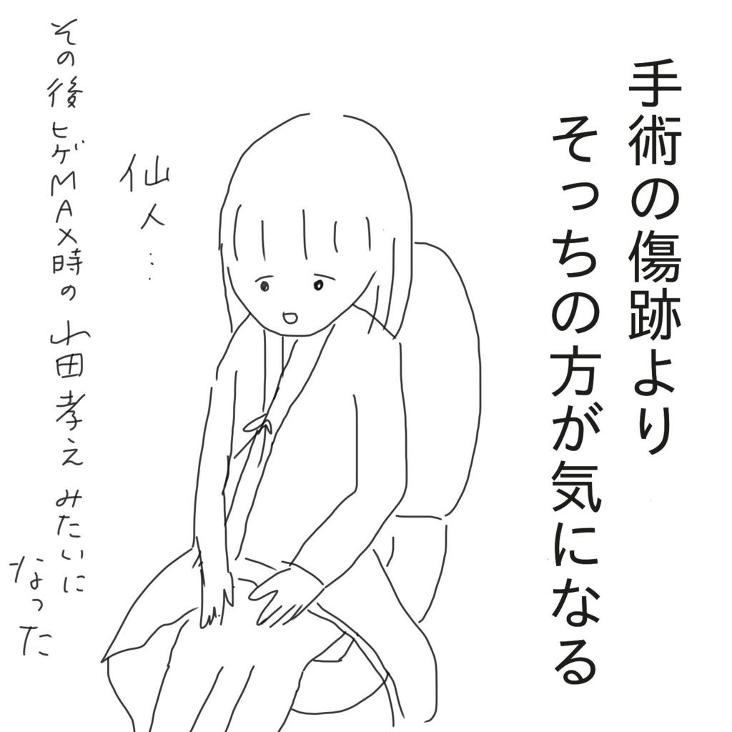 f:id:tarotaroko:20170923214844j:plain