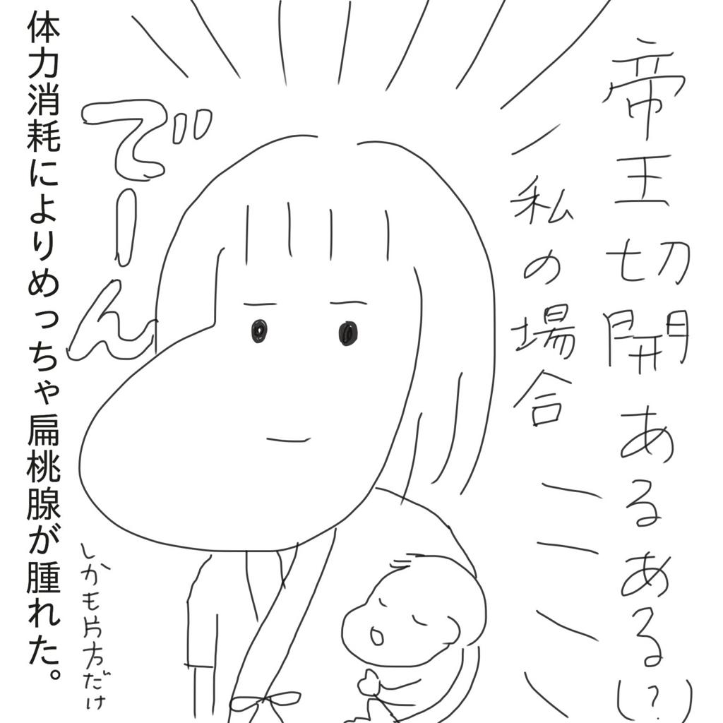 f:id:tarotaroko:20170930164425j:plain
